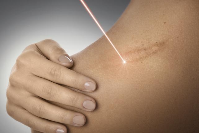 Tratament cicatrici